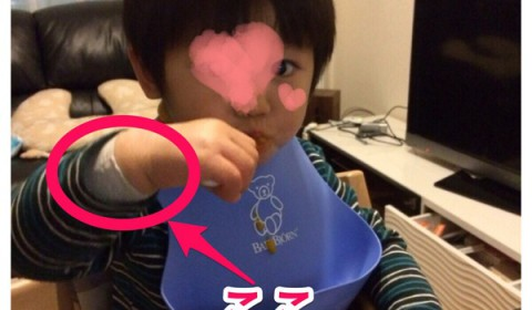 【アトピッ子】チュビファーストと一緒に使うと便利なくっつく包帯